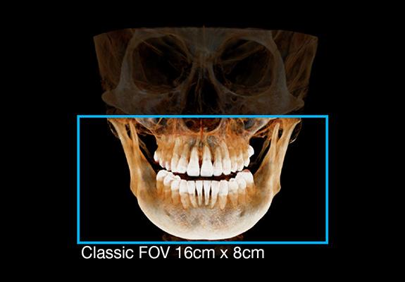 FOV 16x14