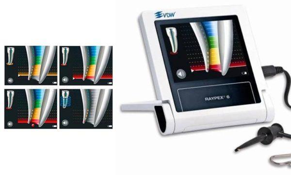 Фото - Raypex 6 - электронно-цифровой апекслокатор 6-го поколения | VDW GmbH (Германия)