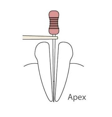Фото - Root ZX mini - стоматологический апекслокатор | J.Morita (Япония)