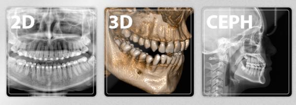 Фото - Hyperion X9 PRO - 3D томограф нового поколения с охватом FOV 13 x 16 | MyRay (Италия)